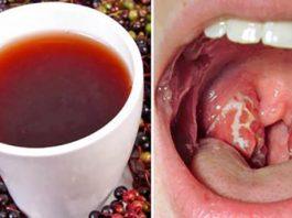 Эффективное средство от боли в горле. Всего 4 часа — и симптомов ангины как не бывало