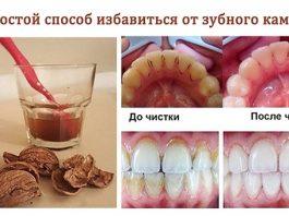 Классный способ избавиться от зубного камня самому и дома