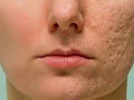 Нанесите это на любой шрам, морщины или пятна у вас на коже и наслаждайтесь тем, как они исчезают за считанные минуты
