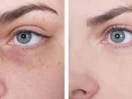 Как убрать тёмные круги под глазами
