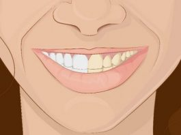 Как использовать кокосовое масло, чтобы получить сверкающую белую улыбку